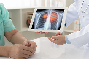 "Thumbnail image for the Subject ""Pulmonology"""