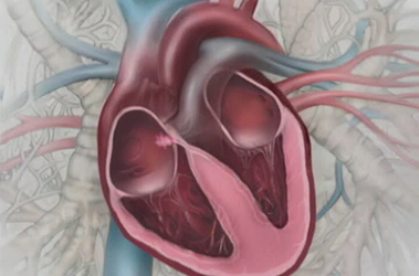 "Thumbnail image for ""Understanding Atrial Fibrillation"""
