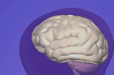 """Thumbnail image for """"Premature Newborn Care: Brain Basics"""""""