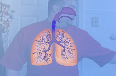 "Thumbnail image for ""What is Asthma?"""