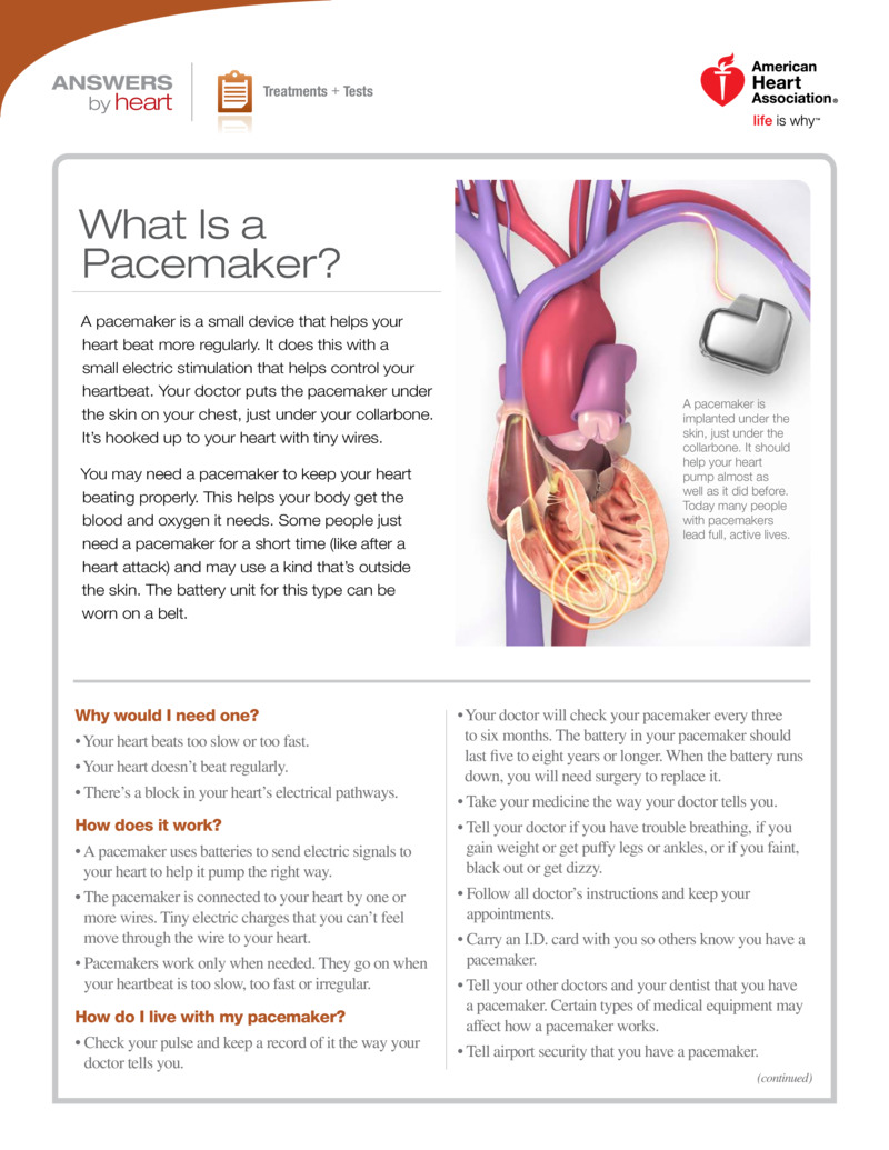 "Poster image for ""What Is a Pacemaker?"""