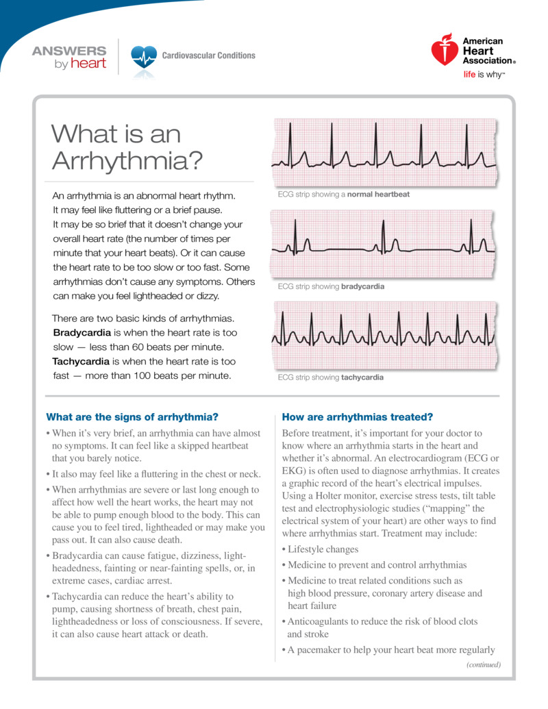 "Poster image for ""What is an Arrhythmia?"""