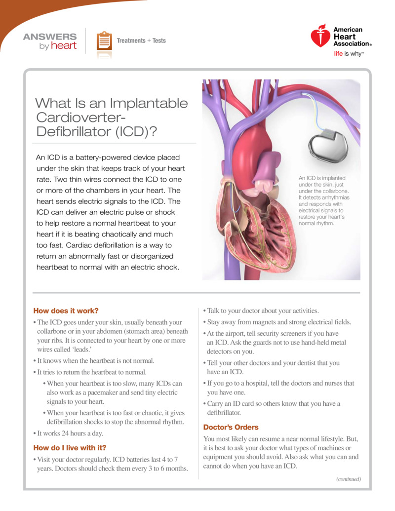 "Poster image for ""What Is an Implantable Cardioverter-Defibrillator (ICD)?"""