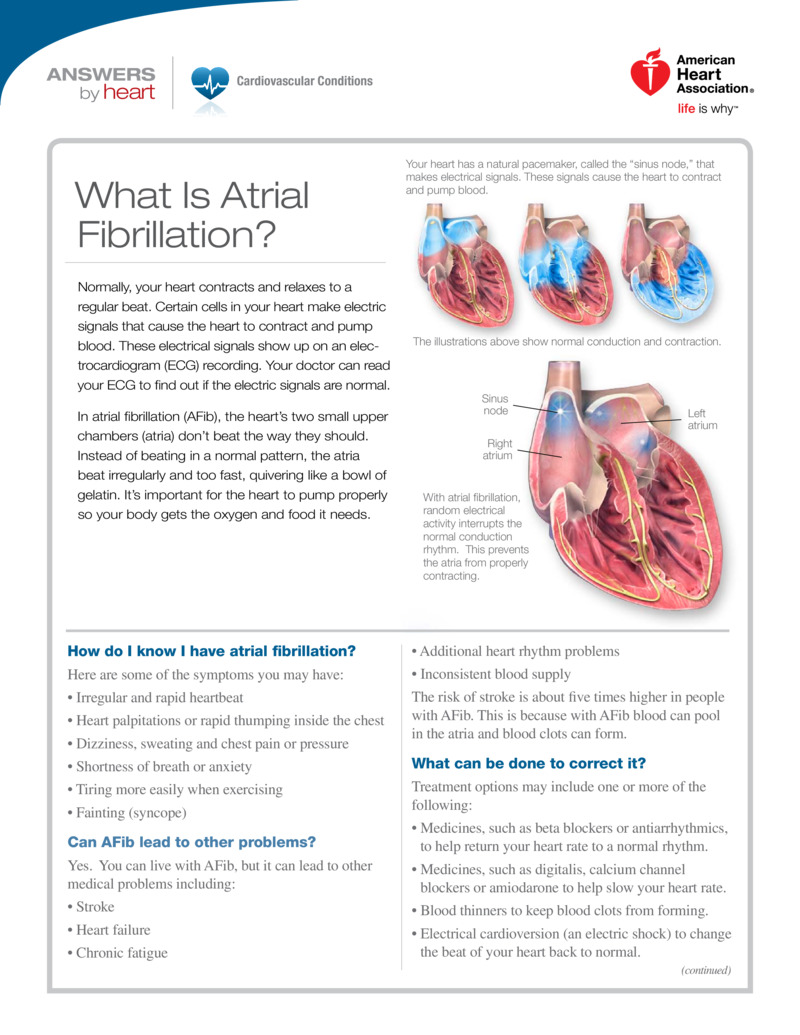 """Poster image for """"What Is Atrial Fibrillation?"""""""