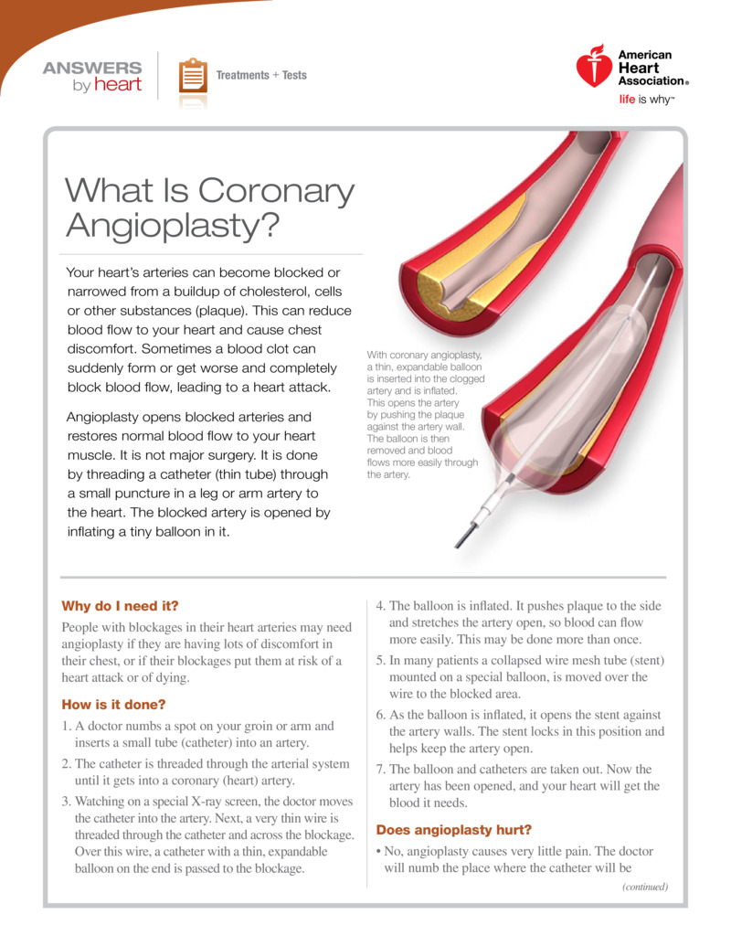 """Poster image for """"What Is Coronary Angioplasty?"""""""