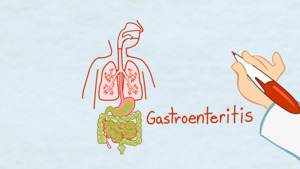 "Thumbnail image for ""What is Gastroenteritis?"""