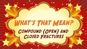 """Thumbnail image for """"Compound (Open) and Closed Fractures: What's That Mean?"""""""