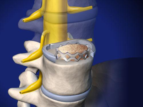 "Thumbnail image for ""ALIF: Anterior Lumbar Interbody Fusion"""