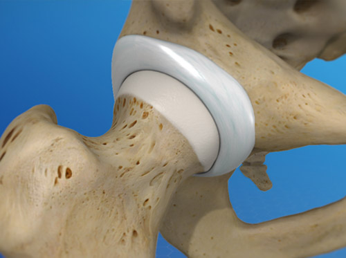 """Thumbnail image for """"Anatomy of the Hip Joint"""""""