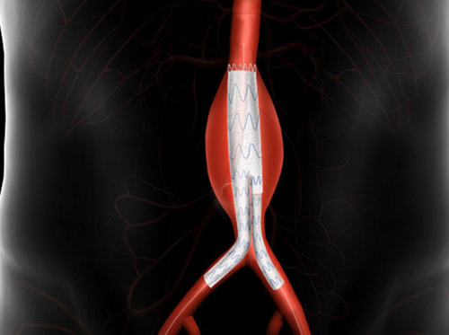 "Thumbnail image for ""AAA Endovascular Repair"""