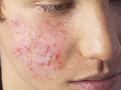 """Thumbnail image for """"Acne"""""""