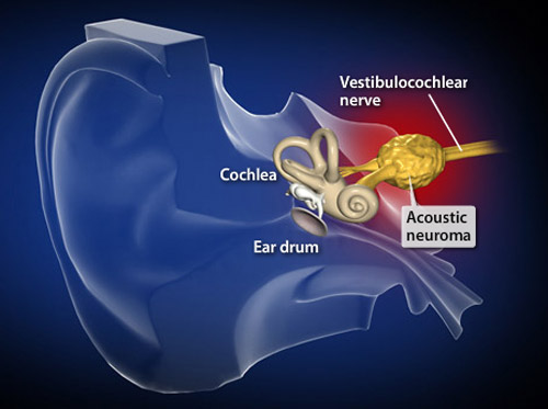 "Thumbnail image for ""Acoustic Neuroma"""