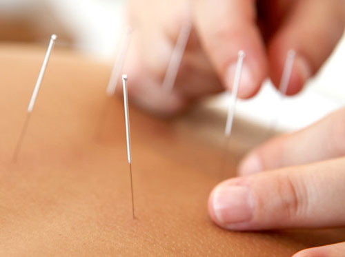 """Thumbnail image for """"About Acupuncture"""""""
