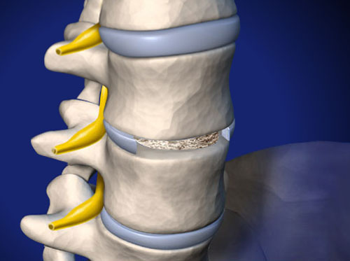 "Thumbnail image for ""ALIF: Anterior Lumbar Interbody Fusion (with bone graft and metal plate)"""