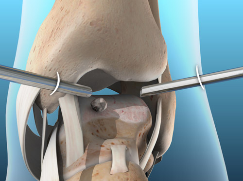 """Thumbnail image for """"Arthroscopy of the Ankle"""""""