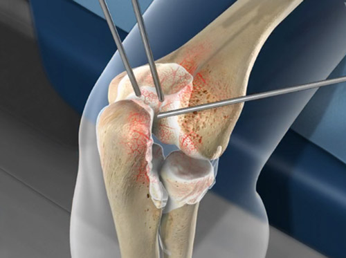 "Thumbnail image for ""Arthroscopic Debridement of the Elbow"""