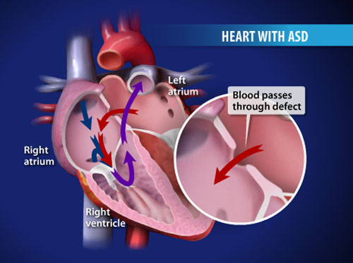 "Thumbnail image for ""Atrial Septal Defect (ASD)"""