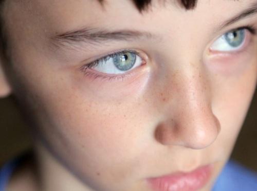 "Thumbnail image for ""Autism Spectrum Disorder (ASD)"""