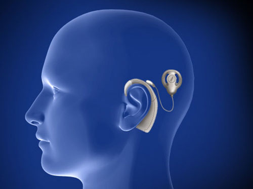 """Thumbnail image for """"Cochlear Implant"""""""