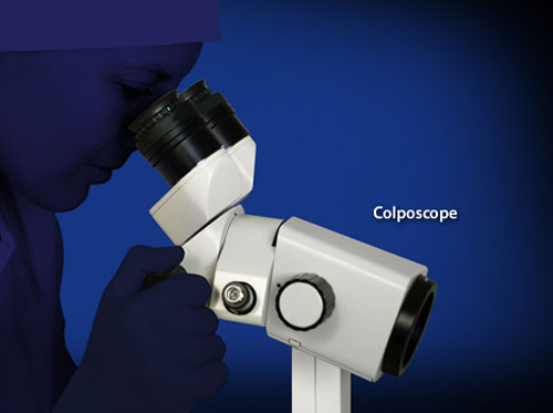 "Thumbnail image for ""Colposcopy"""