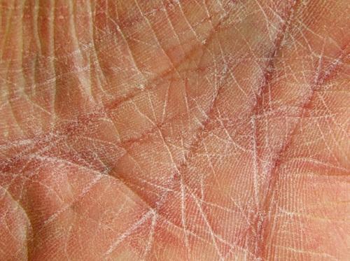 "Thumbnail image for ""Dry Skin"""
