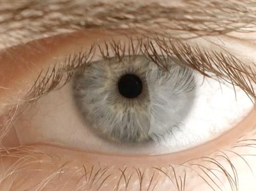 "Thumbnail image for ""Anatomy of the Eye"""