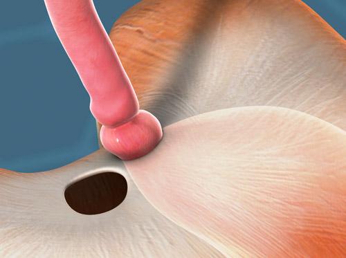 "Thumbnail image for ""Hiatal Hernia"""