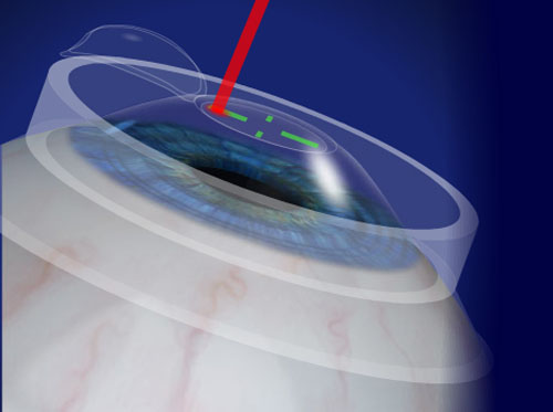 "Thumbnail image for ""LASIK with the VISX CustomVue System"""