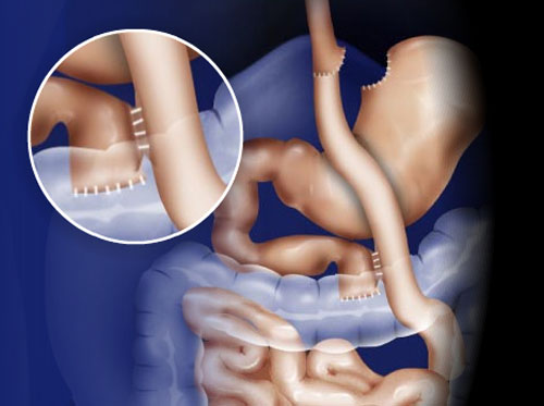"""Thumbnail image for """"Roux-en-Y Gastric Bypass (Open Surgery Method)"""""""