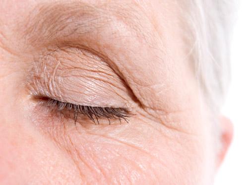 "Thumbnail image for ""Wrinkles"""