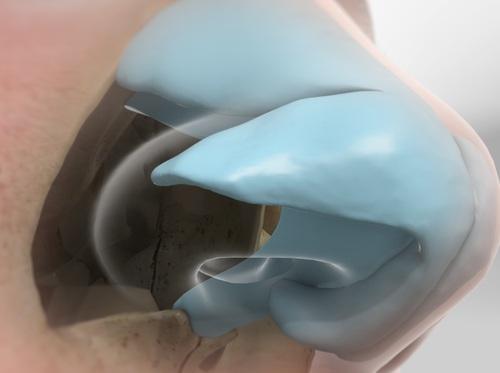 """Thumbnail image for """"Septoplasty"""""""