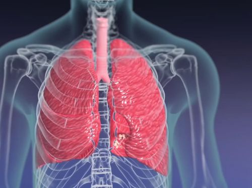 """Thumbnail image for """"Anatomy of the Lungs"""""""